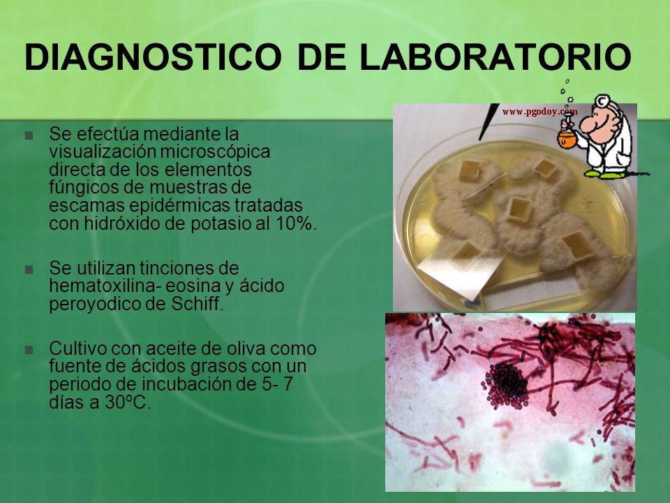DIAGNOSTICO DE LABORATORIO Se efectúa mediante la visualización microscópica directa de los elementos fúngicos de muestras de escamas epidérmicas trat