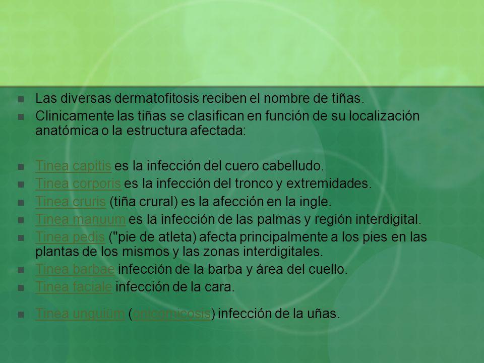 Las diversas dermatofitosis reciben el nombre de tiñas. Clinicamente las tiñas se clasifican en función de su localización anatómica o la estructura a