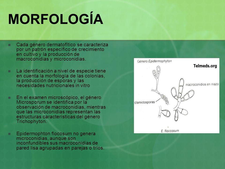 MORFOLOGÍA Cada género dermatofítico se caracteriza por un patrón específico de crecimiento en cultivo y la producción de macroconidias y microconidia