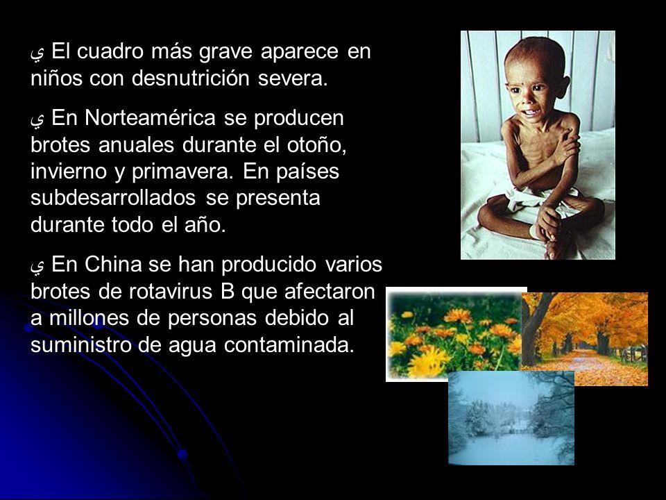 El cuadro más grave aparece en niños con desnutrición severa. En Norteamérica se producen brotes anuales durante el otoño, invierno y primavera. En pa