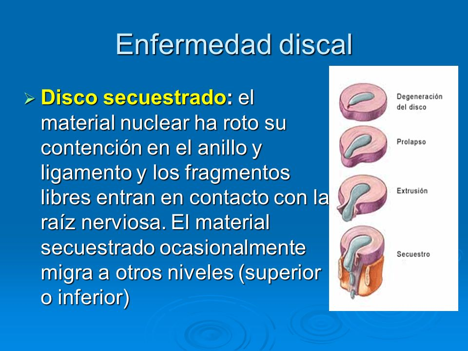 Enfermedad discal Disco secuestrado: el material nuclear ha roto su contención en el anillo y ligamento y los fragmentos libres entran en contacto con
