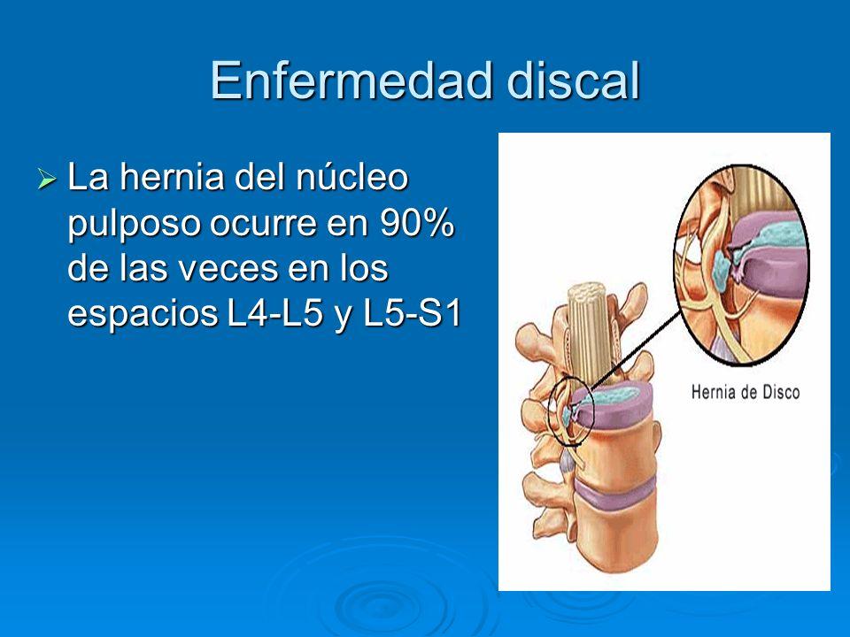 Enfermedad discal La hernia del núcleo pulposo ocurre en 90% de las veces en los espacios L4-L5 y L5-S1 La hernia del núcleo pulposo ocurre en 90% de