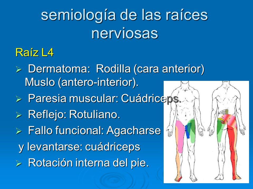 semiología de las raíces nerviosas Raíz L4 Dermatoma: Rodilla (cara anterior) Muslo (antero-interior). Dermatoma: Rodilla (cara anterior) Muslo (anter