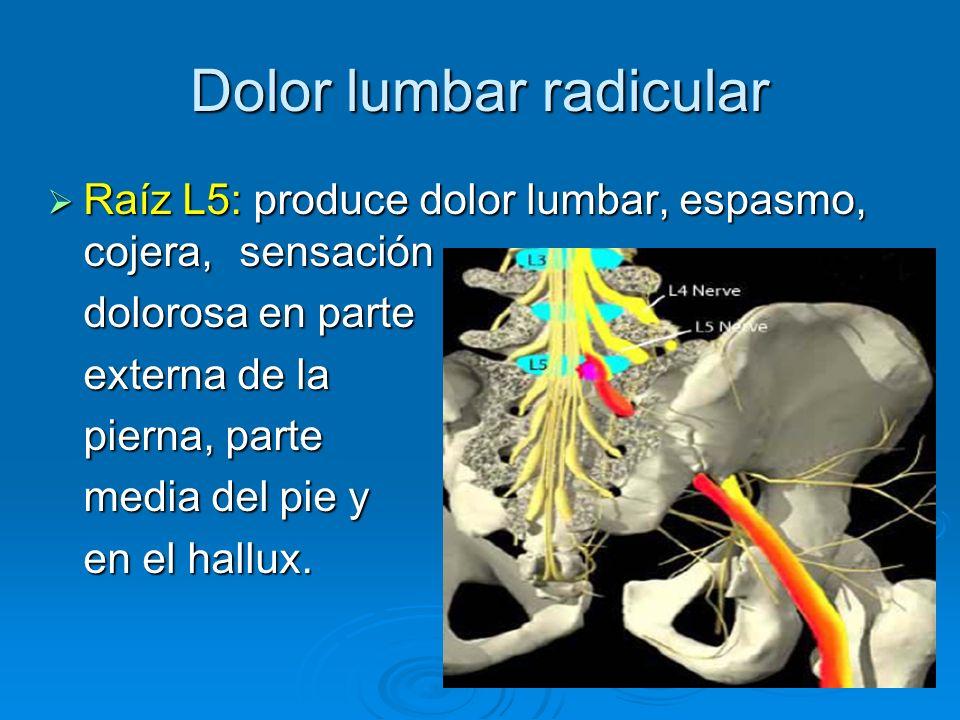 Dolor lumbar radicular Raíz L5: produce dolor lumbar, espasmo, cojera, sensación Raíz L5: produce dolor lumbar, espasmo, cojera, sensación dolorosa en