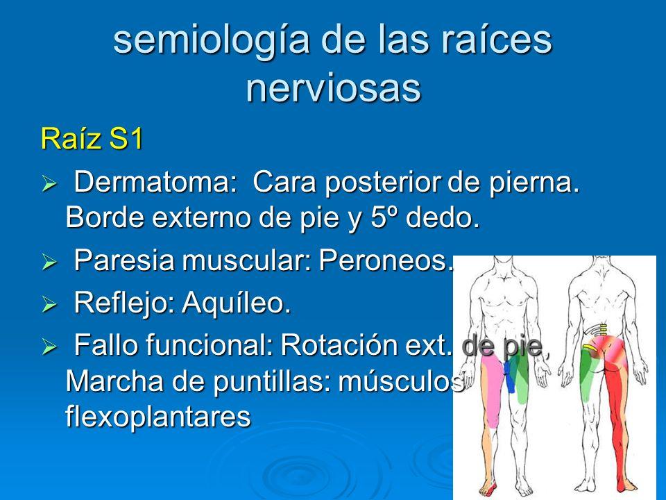 semiología de las raíces nerviosas Raíz S1 Dermatoma: Cara posterior de pierna. Borde externo de pie y 5º dedo. Dermatoma: Cara posterior de pierna. B