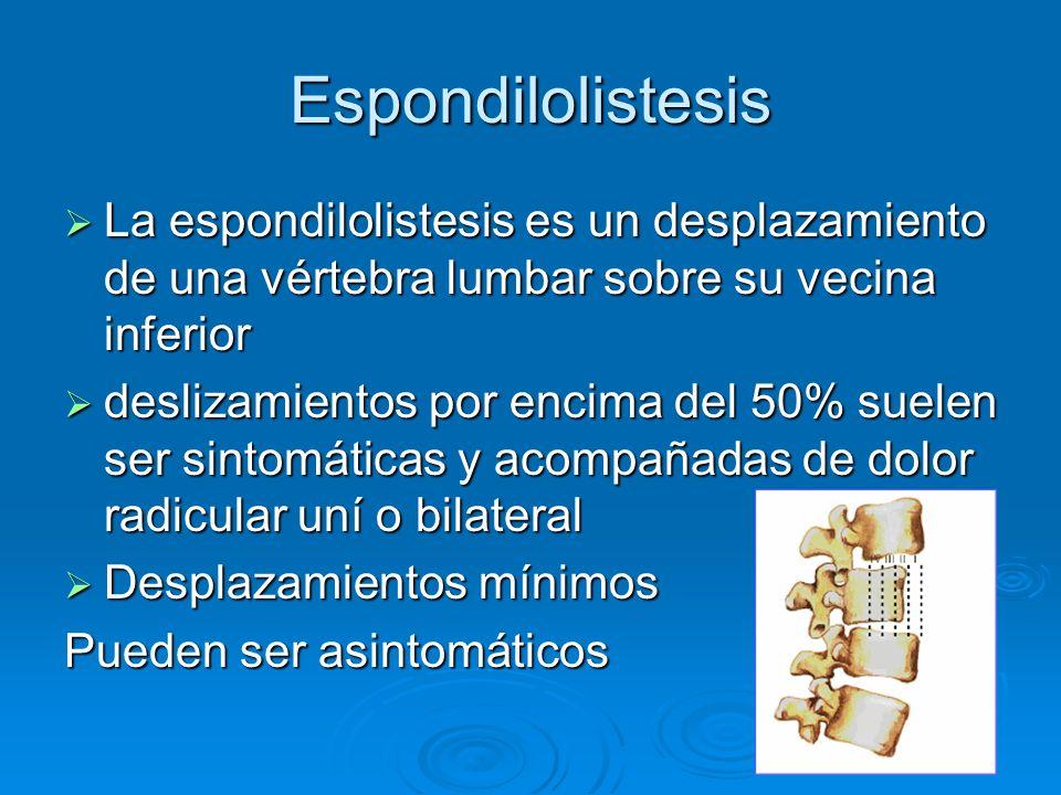 Espondilolistesis La espondilolistesis es un desplazamiento de una vértebra lumbar sobre su vecina inferior La espondilolistesis es un desplazamiento