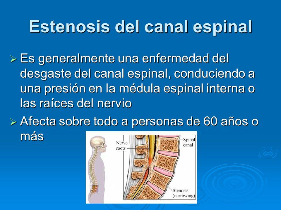 Estenosis del canal espinal Es generalmente una enfermedad del desgaste del canal espinal, conduciendo a una presión en la médula espinal interna o la