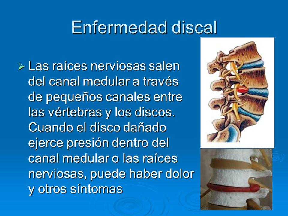 Enfermedad discal Las raíces nerviosas salen del canal medular a través de pequeños canales entre las vértebras y los discos. Cuando el disco dañado e