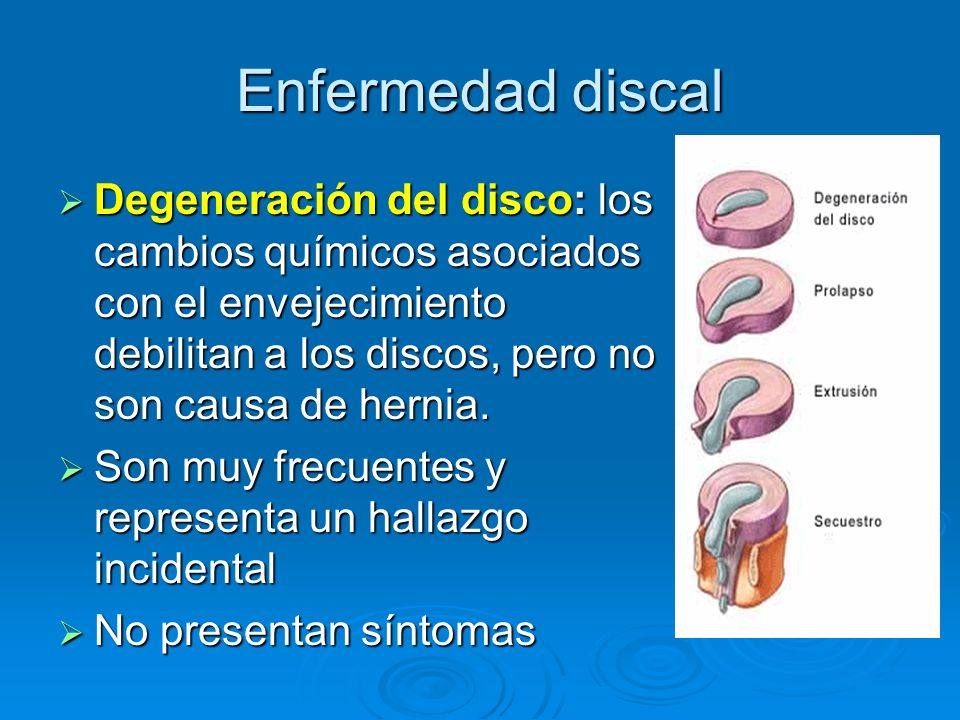 Enfermedad discal Degeneración del disco: los cambios químicos asociados con el envejecimiento debilitan a los discos, pero no son causa de hernia. De