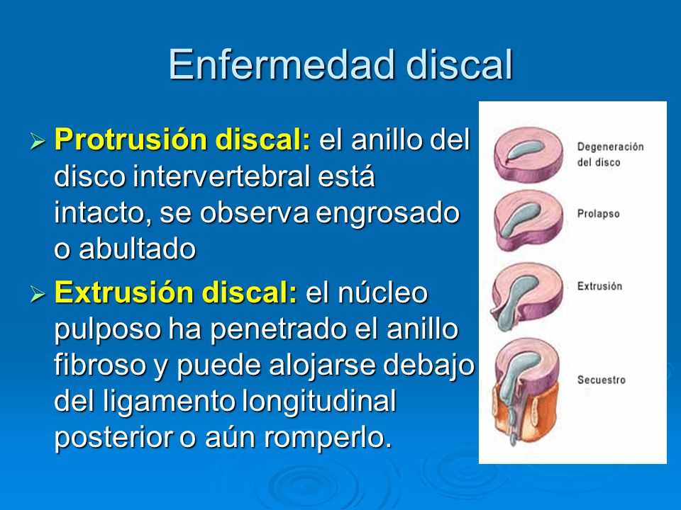 Enfermedad discal Protrusión discal: el anillo del disco intervertebral está intacto, se observa engrosado o abultado Protrusión discal: el anillo del