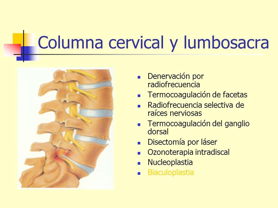 Columna cervical y lumbosacra Denervación por radiofrecuencia Termocoagulación de facetas Radiofrecuencia selectiva de raíces nerviosas Termocoagulaci