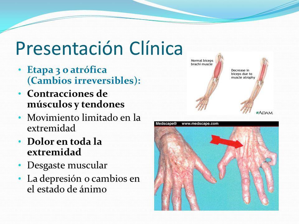 Presentación Clínica Etapa 3 o atrófica (Cambios irreversibles): Contracciones de músculos y tendones Movimiento limitado en la extremidad Dolor en to