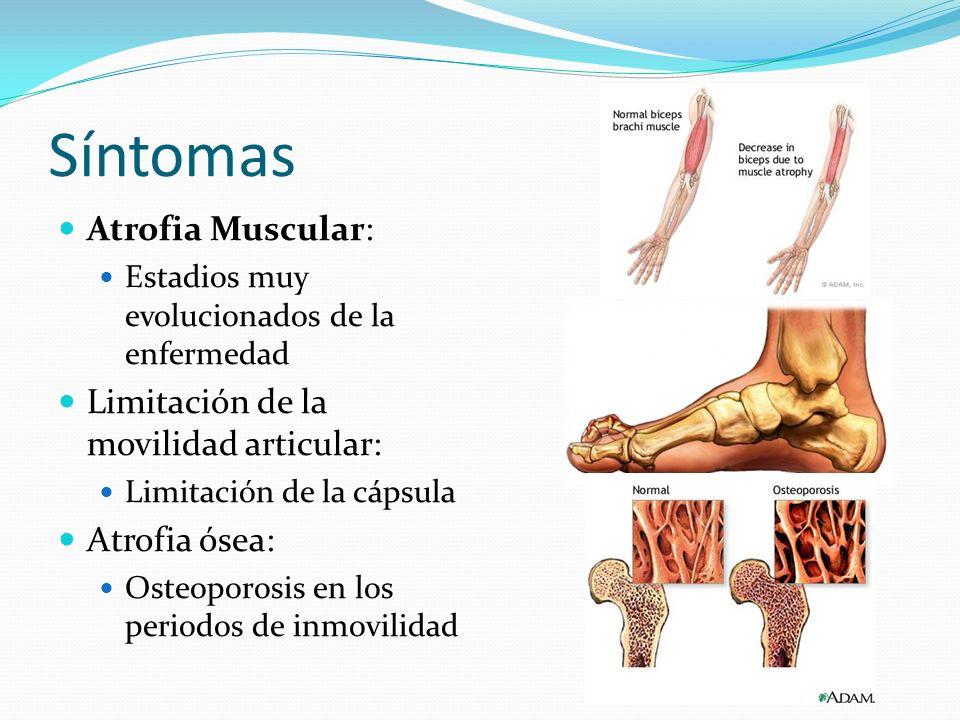 Síntomas Atrofia Muscular: Estadios muy evolucionados de la enfermedad Limitación de la movilidad articular: Limitación de la cápsula Atrofia ósea: Os