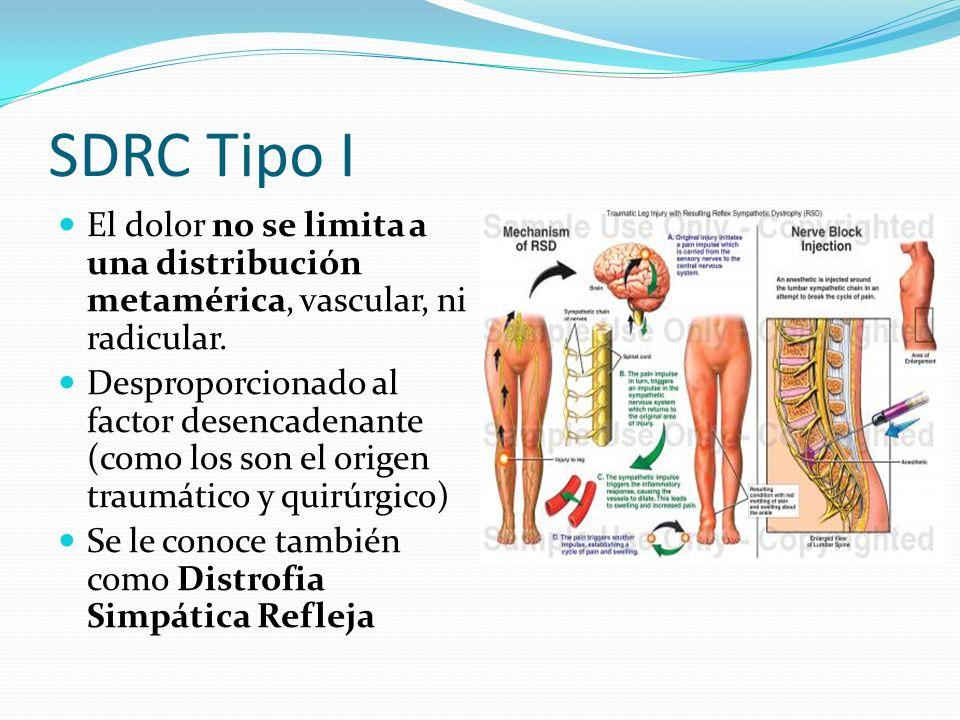 SDRC Tipo I El dolor no se limita a una distribución metamérica, vascular, ni radicular. Desproporcionado al factor desencadenante (como los son el or