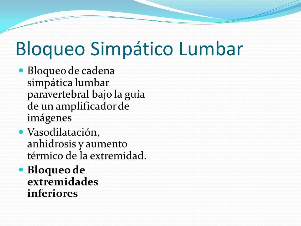 Bloqueo Simpático Lumbar Bloqueo de cadena simpática lumbar paravertebral bajo la guía de un amplificador de imágenes Vasodilatación, anhidrosis y aum