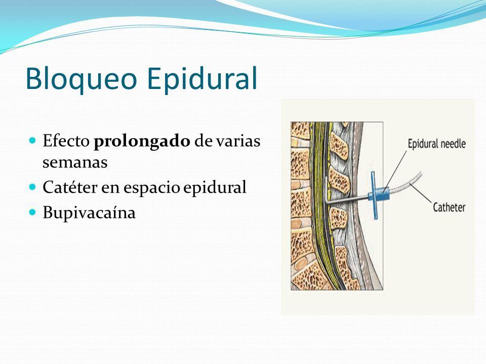 Bloqueo Epidural Efecto prolongado de varias semanas Catéter en espacio epidural Bupivacaína