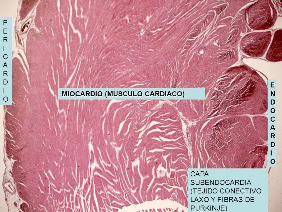 ENDOCARDIOENDOCARDIOENDOCARDIOENDOCARDIO CAPA SUBENDOCARDIA (TEJIDO CONECTIVO LAXO Y FIBRAS DE PURKINJE) MIOCARDIO (MUSCULO CARDIACO) PERICARDIOPERICA