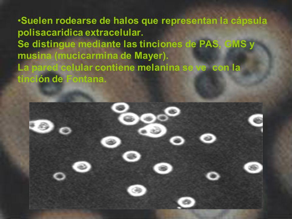Suelen rodearse de halos que representan la cápsula polisacaridica extracelular. Se distingue mediante las tinciones de PAS, GMS y musina (mucicarmina