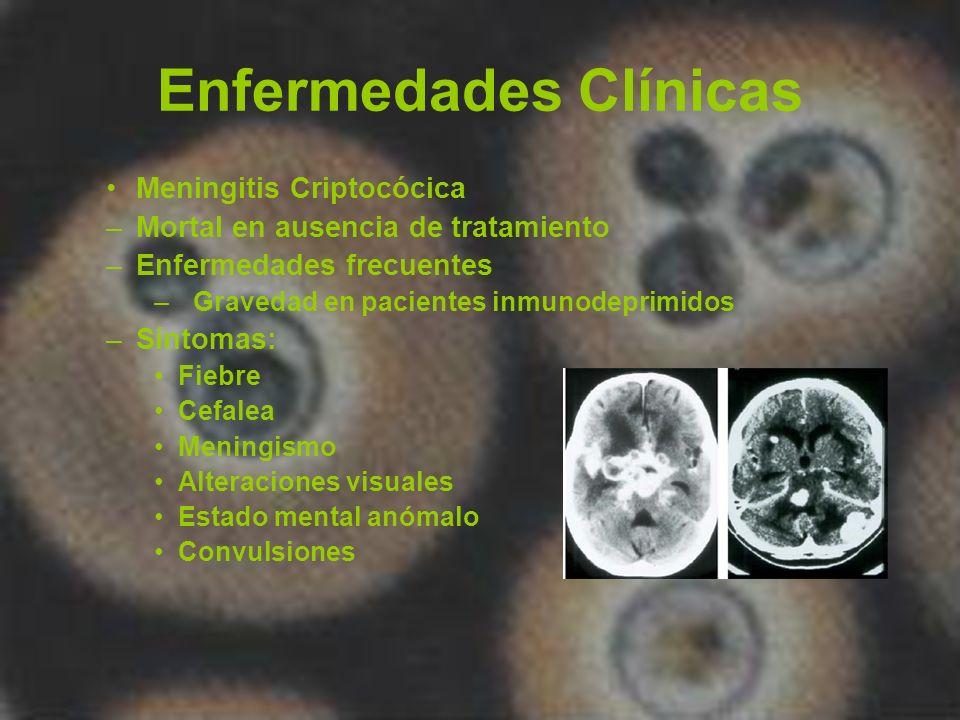 Enfermedades Clínicas Criptococosis –Proceso neumónico Asintomático o fulminante Cavitaciones infrecuentes –Infección extensa con formas Cutáneas Mucocutáneas Óseas Viserales