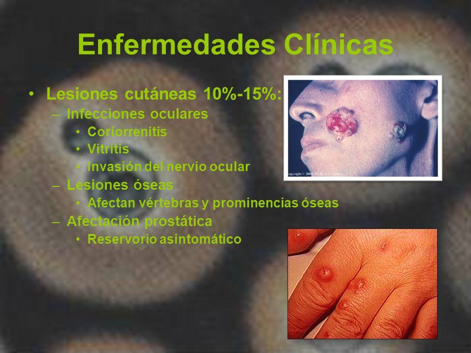 Enfermedades Clínicas Lesiones cutáneas 10%-15%: –Infecciones oculares Coriorrenitis Vitritis Invasión del nervio ocular –Lesiones óseas Afectan vérte