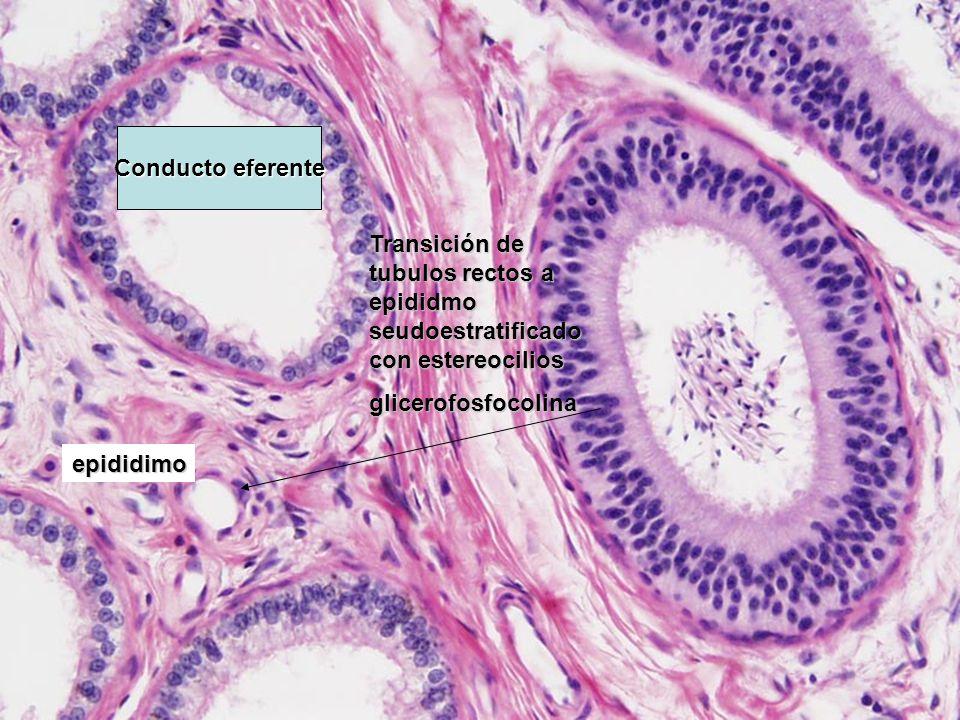Transición de tubulos rectos a epididmo seudoestratificado con estereocilios glicerofosfocolina epididimo Conducto eferente