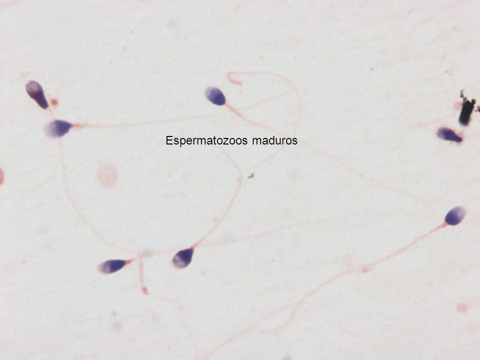 Espermatozoos maduros