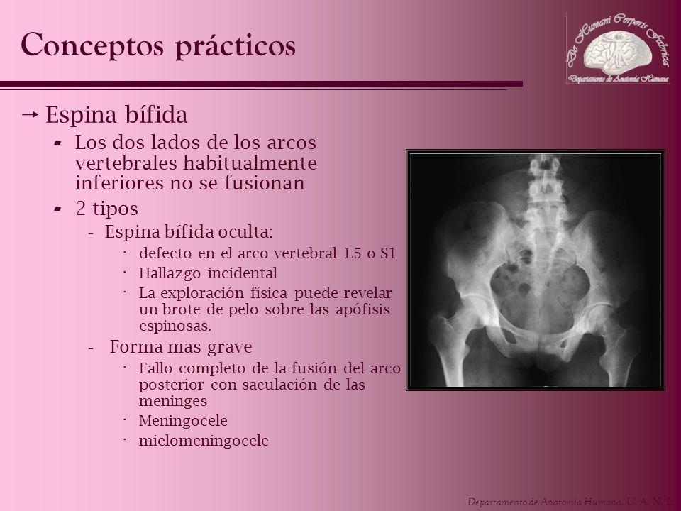 Departamento de Anatomía Humana, U. A. N. L. Conceptos prácticos Espina bífida - Los dos lados de los arcos vertebrales habitualmente inferiores no se