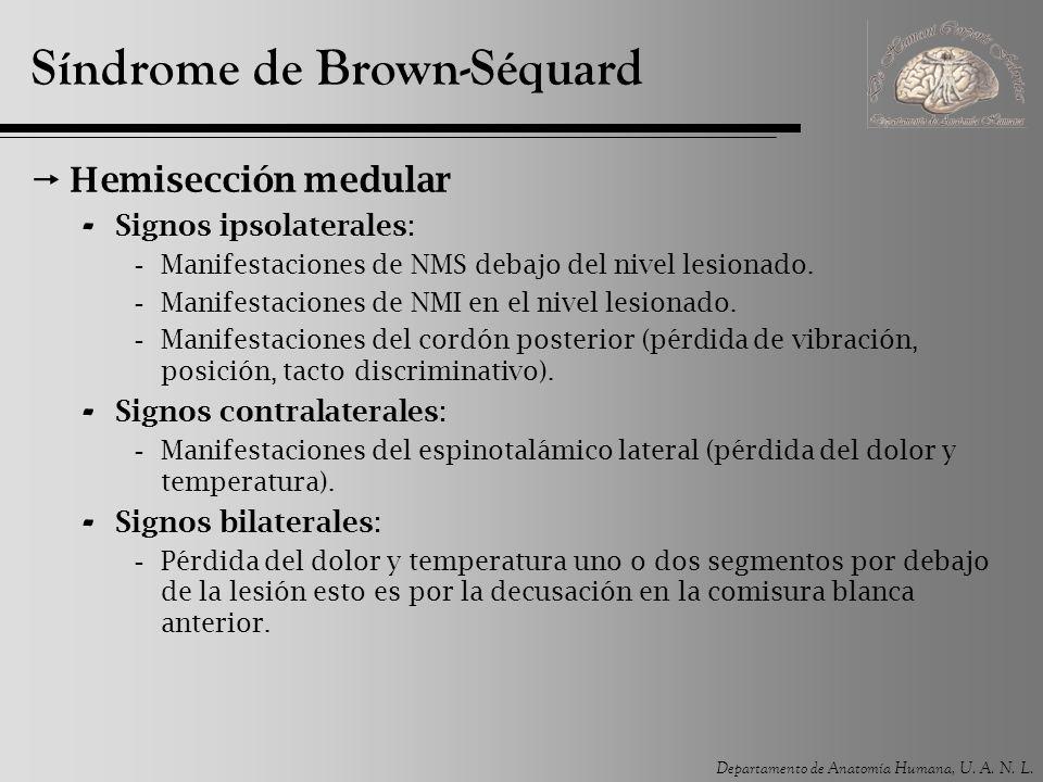 Departamento de Anatomía Humana, U.A. N. L. Shock Medular Sección completa de la médula espinal.