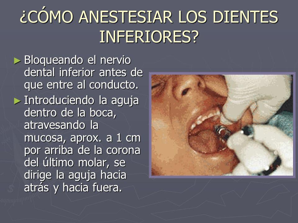 ¿CÓMO ANESTESIAR LOS DIENTES INFERIORES? Bloqueando el nervio dental inferior antes de que entre al conducto. Bloqueando el nervio dental inferior ant