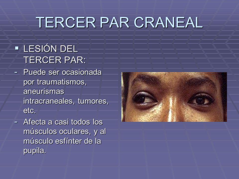 TERCER PAR CRANEAL LESIÓN DEL TERCER PAR: LESIÓN DEL TERCER PAR: - Puede ser ocasionada por traumatismos, aneurismas intracraneales, tumores, etc. - A