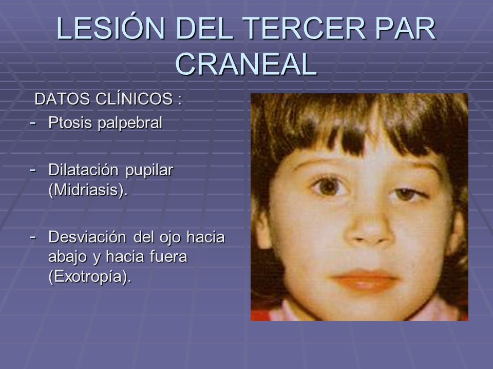 LESIÓN DEL TERCER PAR CRANEAL DATOS CLÍNICOS : DATOS CLÍNICOS : - Ptosis palpebral - Dilatación pupilar (Midriasis). - Desviación del ojo hacia abajo