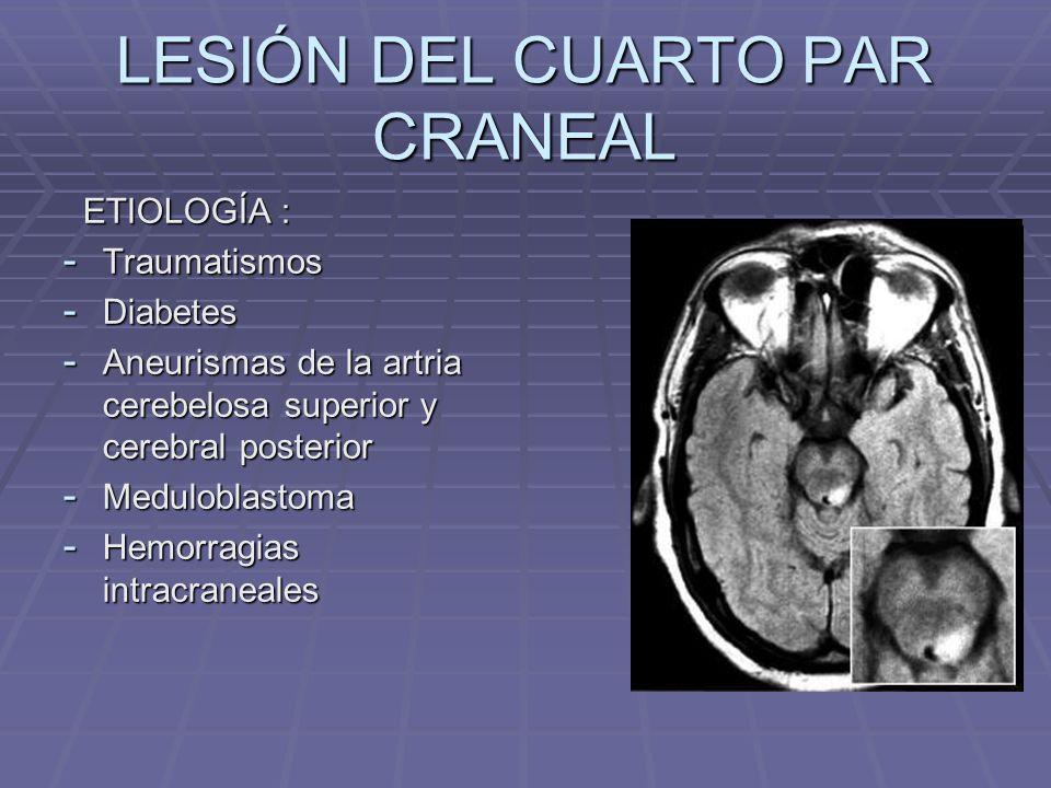 LESIÓN DEL CUARTO PAR CRANEAL ETIOLOGÍA : ETIOLOGÍA : - Traumatismos - Diabetes - Aneurismas de la artria cerebelosa superior y cerebral posterior - M