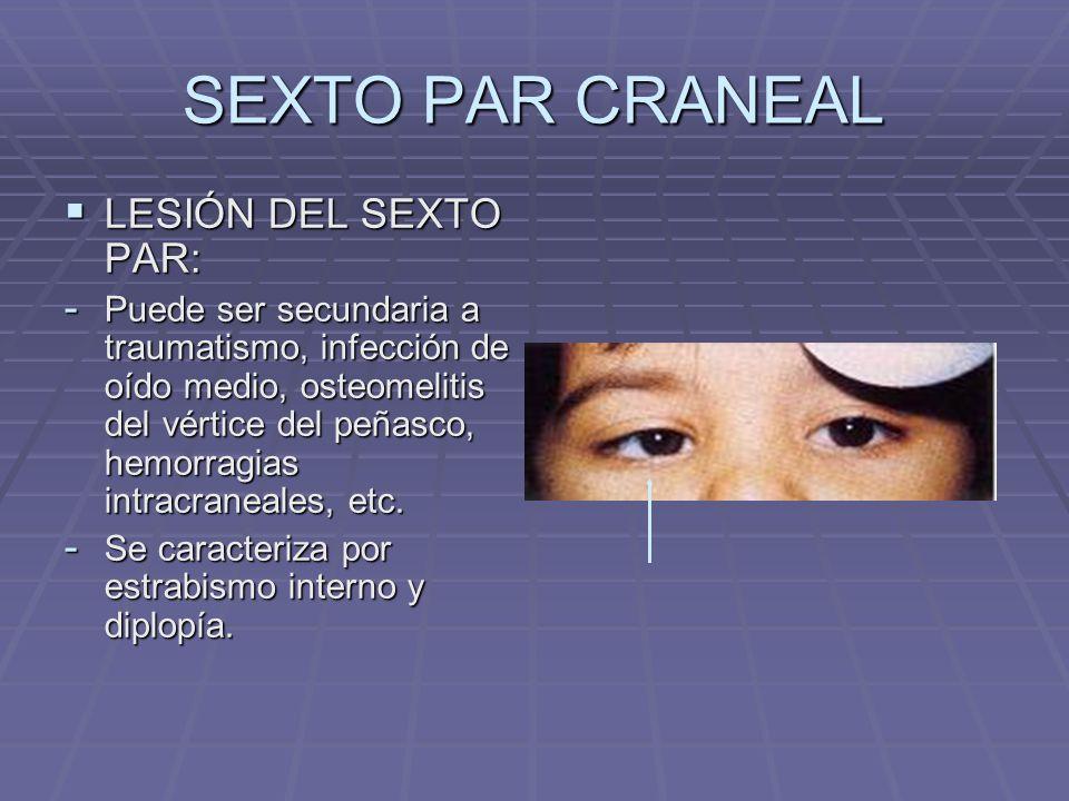 SEXTO PAR CRANEAL LESIÓN DEL SEXTO PAR: LESIÓN DEL SEXTO PAR: - Puede ser secundaria a traumatismo, infección de oído medio, osteomelitis del vértice