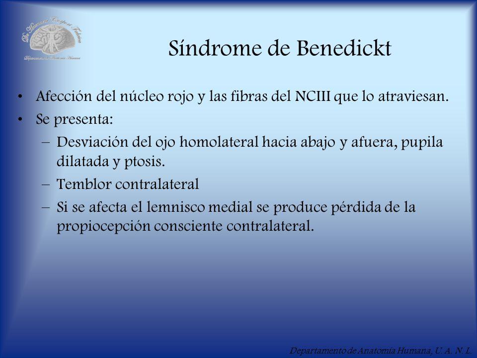 Departamento de Anatomía Humana, U. A. N. L. Síndrome de Benedickt Afección del núcleo rojo y las fibras del NCIII que lo atraviesan. Se presenta: –De