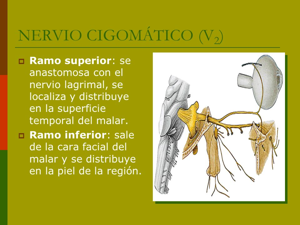 NERVIO CIGOMÁTICO (V 2 ) Ramo superior: se anastomosa con el nervio lagrimal, se localiza y distribuye en la superficie temporal del malar. Ramo infer