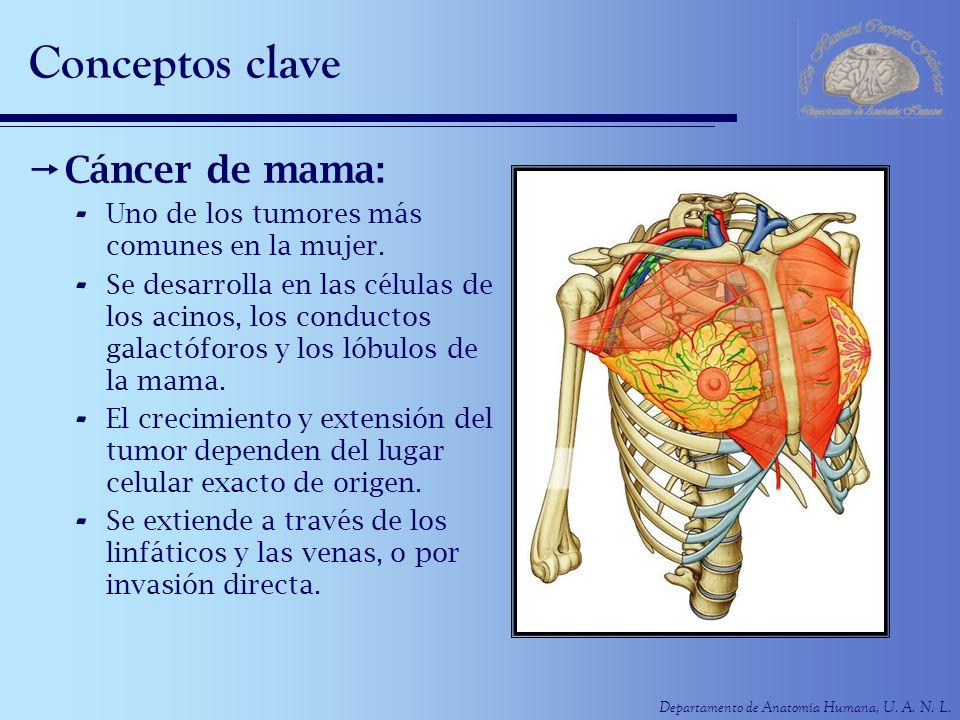 Departamento de Anatomía Humana, U. A. N. L. Conceptos clave Cáncer de mama: - Uno de los tumores más comunes en la mujer. - Se desarrolla en las célu