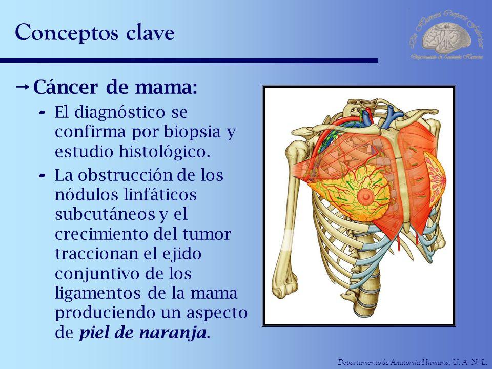 Departamento de Anatomía Humana, U. A. N. L. Conceptos clave Cáncer de mama: - El diagnóstico se confirma por biopsia y estudio histológico. - La obst