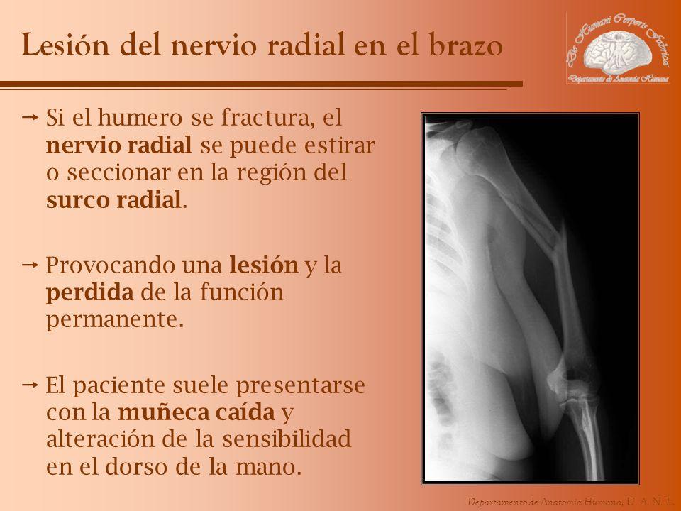 Departamento de Anatomía Humana, U. A. N. L. Lesión del nervio radial en el brazo Si el humero se fractura, el nervio radial se puede estirar o seccio