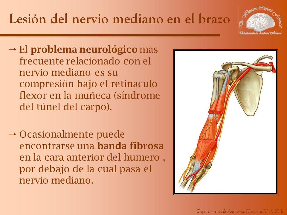 Departamento de Anatomía Humana, U. A. N. L. Lesión del nervio mediano en el brazo El problema neurológico mas frecuente relacionado con el nervio med