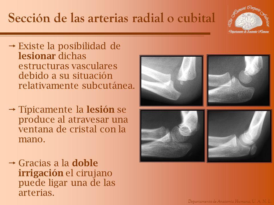 Departamento de Anatomía Humana, U. A. N. L. Sección de las arterias radial o cubital Existe la posibilidad de lesionar dichas estructuras vasculares