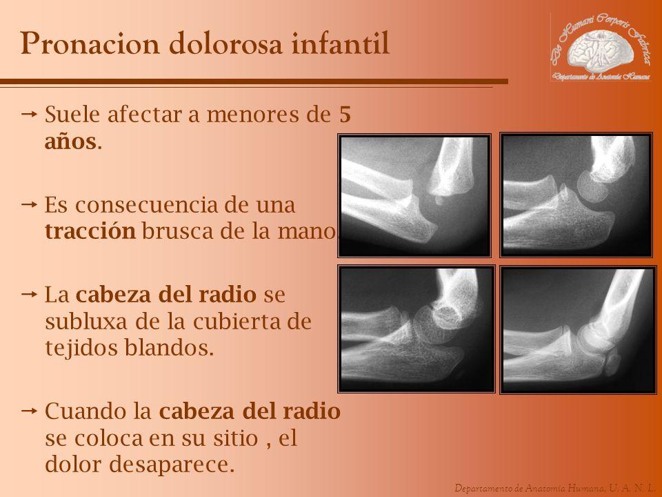 Departamento de Anatomía Humana, U. A. N. L. Pronacion dolorosa infantil Suele afectar a menores de 5 años. Es consecuencia de una tracción brusca de