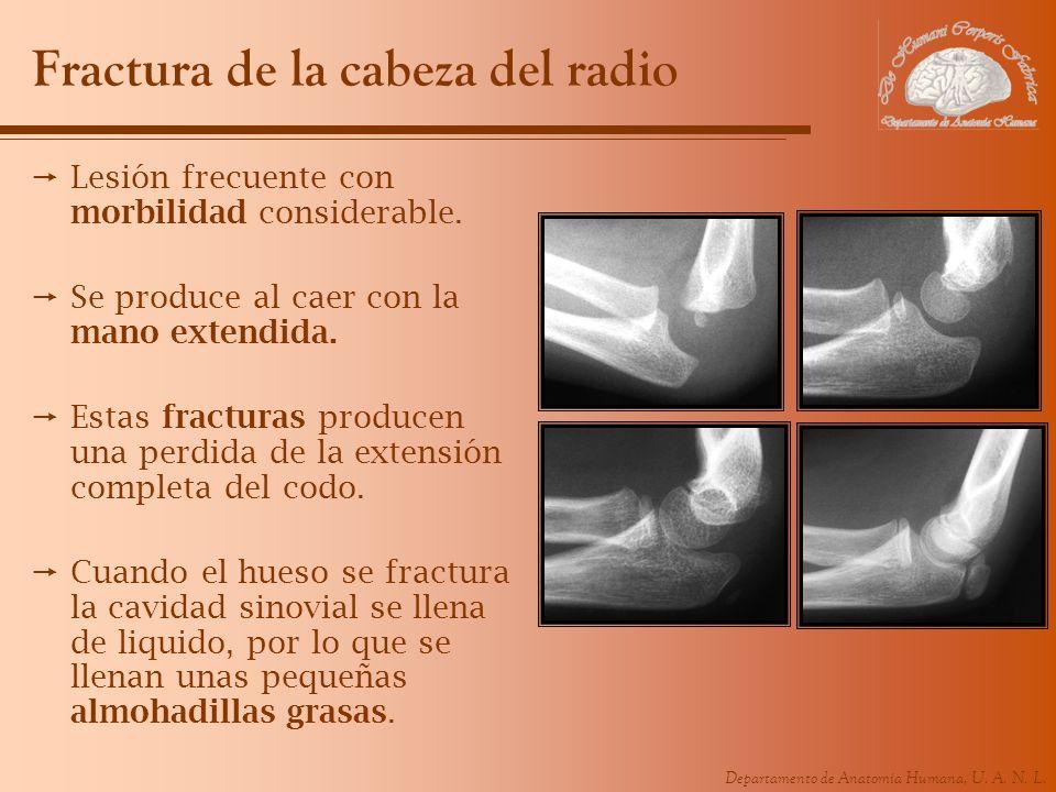Departamento de Anatomía Humana, U. A. N. L. Fractura de la cabeza del radio Lesión frecuente con morbilidad considerable. Se produce al caer con la m