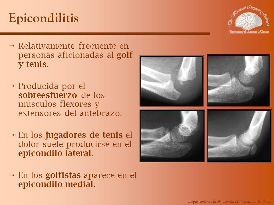 Departamento de Anatomía Humana, U. A. N. L. Epicondilitis Relativamente frecuente en personas aficionadas al golf y tenis. Producida por el sobreesfu