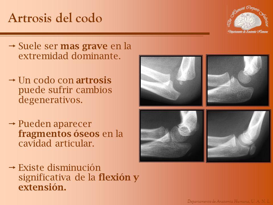 Departamento de Anatomía Humana, U. A. N. L. Artrosis del codo Suele ser mas grave en la extremidad dominante. Un codo con artrosis puede sufrir cambi