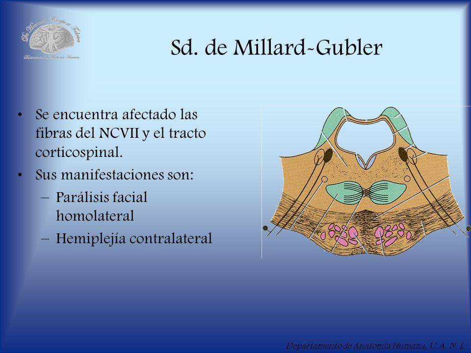 Departamento de Anatomía Humana, U. A. N. L. Sd. de Millard-Gubler Se encuentra afectado las fibras del NCVII y el tracto corticospinal. Sus manifesta
