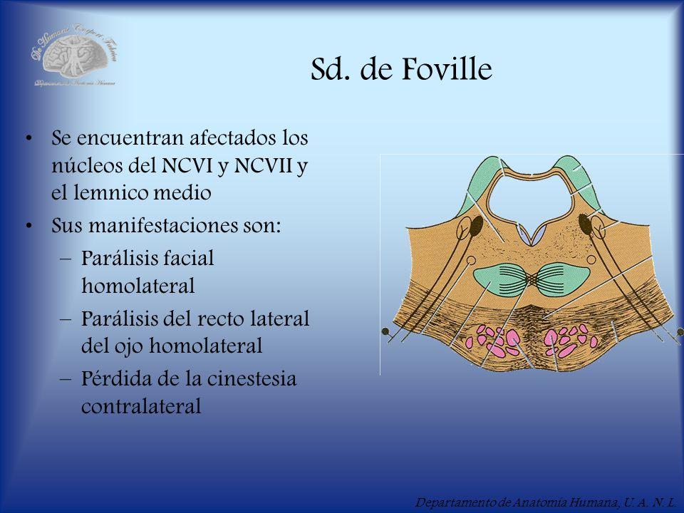 Departamento de Anatomía Humana, U. A. N. L. Sd. de Foville Se encuentran afectados los núcleos del NCVI y NCVII y el lemnico medio Sus manifestacione