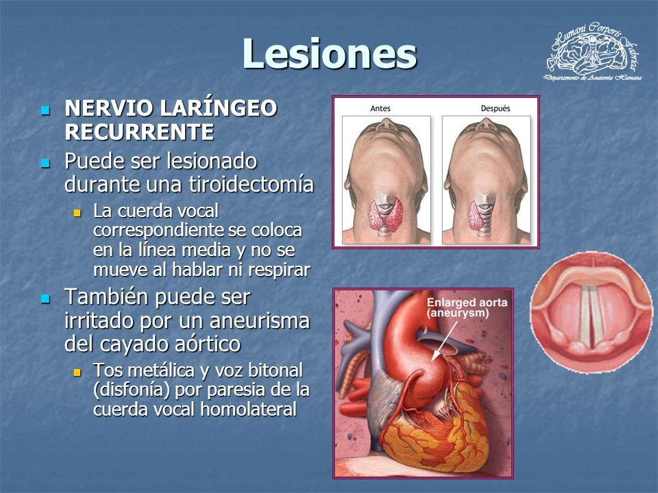 Lesiones NERVIO LARÍNGEO RECURRENTE NERVIO LARÍNGEO RECURRENTE Puede ser lesionado durante una tiroidectomía Puede ser lesionado durante una tiroidect