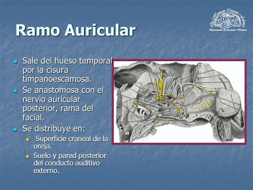 Ramo Auricular Sale del hueso temporal por la cisura timpanoescamosa. Sale del hueso temporal por la cisura timpanoescamosa. Se anastomosa con el nerv