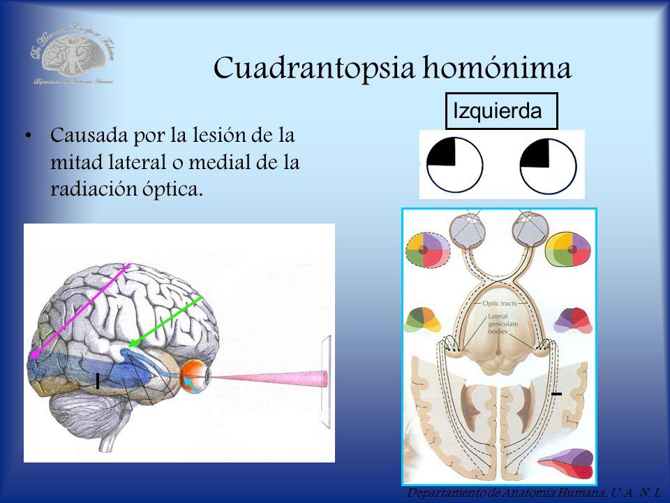 Departamento de Anatomía Humana, U. A. N. L. Cuadrantopsia homónima Causada por la lesión de la mitad lateral o medial de la radiación óptica. Izquier