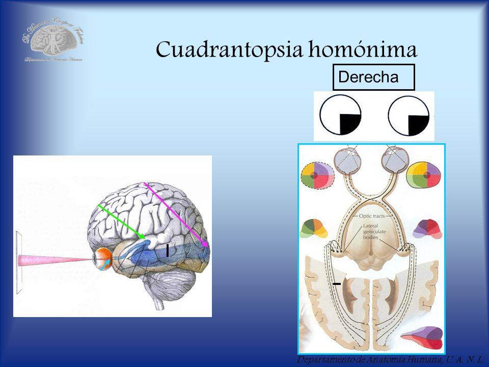 Departamento de Anatomía Humana, U. A. N. L. Cuadrantopsia homónima Derecha